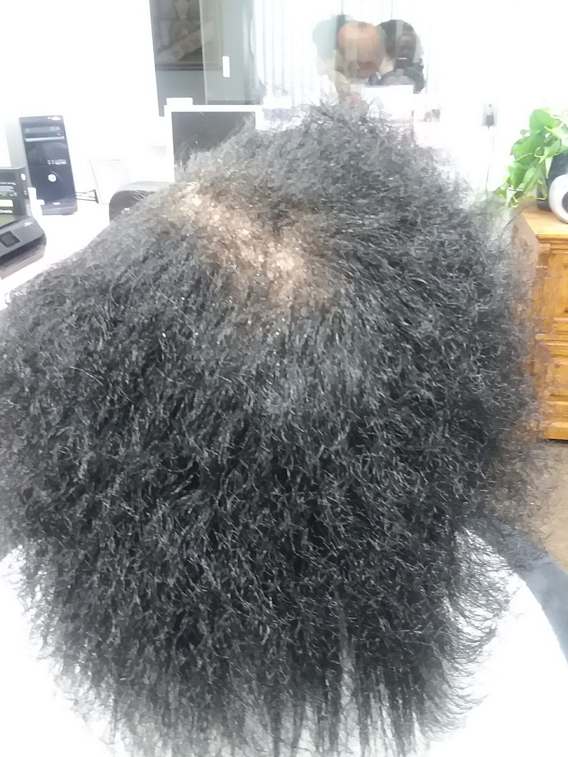 Hairloss-9-months-Growth-scaled